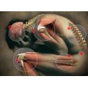 Fibromialgie - suplimente naturale (tratament)
